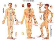 Medicina china tradicional, acupuntura