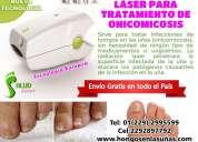 Laser para la onicomicosis en las uñas