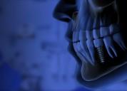 Cuanto cuesta un implante dental en mexico
