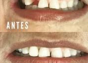 Dental clínica fundacion gad nicolÁs romero